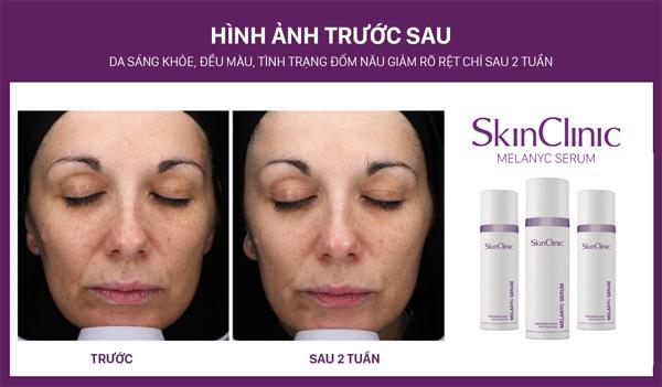 SkinClinic Melanyc Serum - Belle Lab