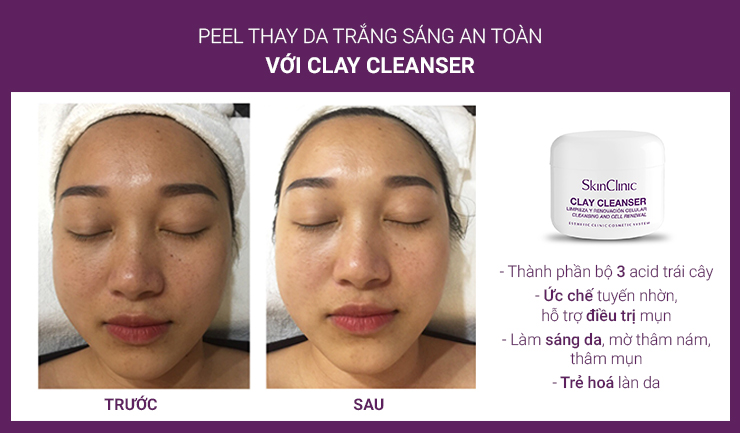 SkinClinic Clay Cleanser - Belle Lab