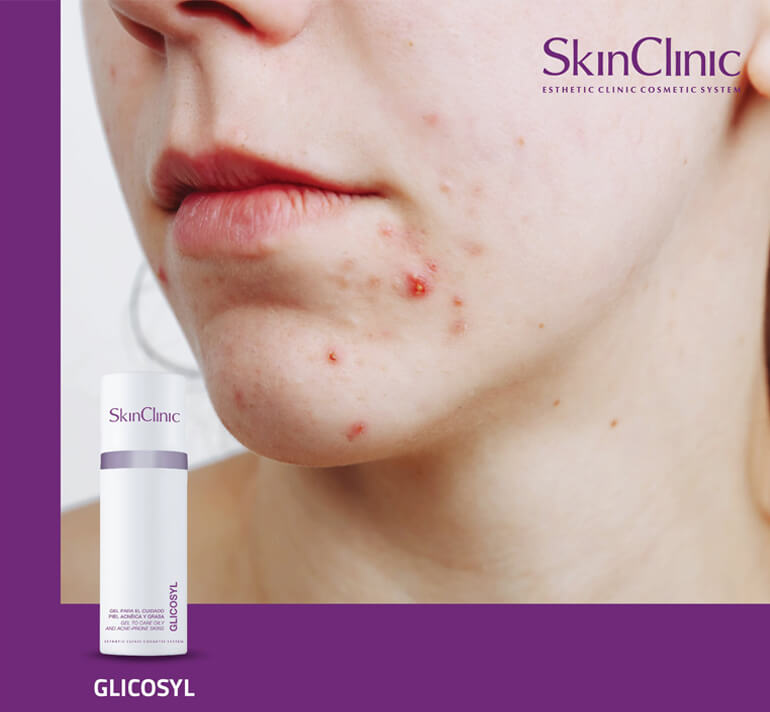 SkinClinic Glycosyl - Belle Lab